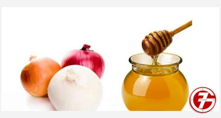 طريقة آمنة وطبيعية لعلاج البواسير بالبصل والعسل